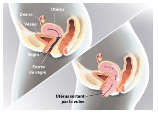 Descente de l uterus