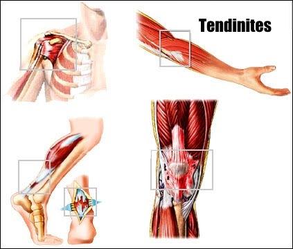 Tendinites et hygroma
